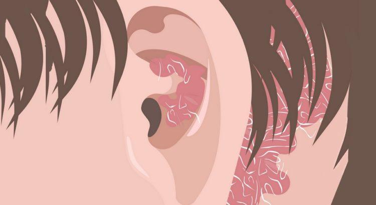 Psoriasis i og omkring øret