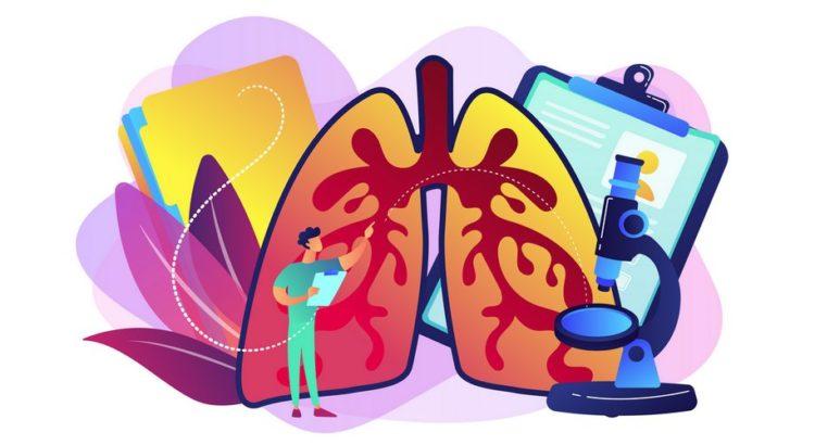 Lunger der bliver undersøgt