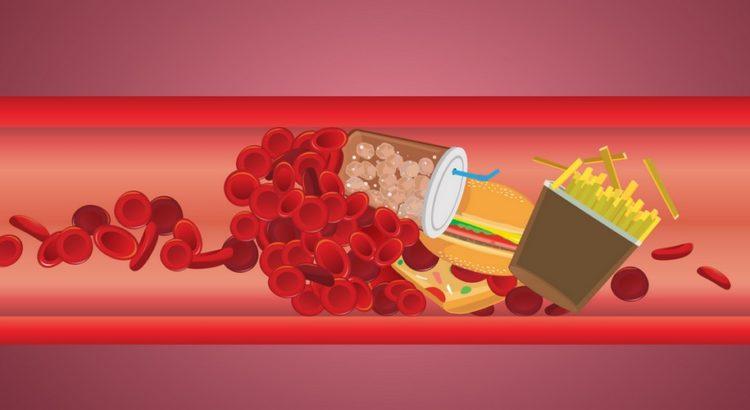Arterie fyldt med junkfood