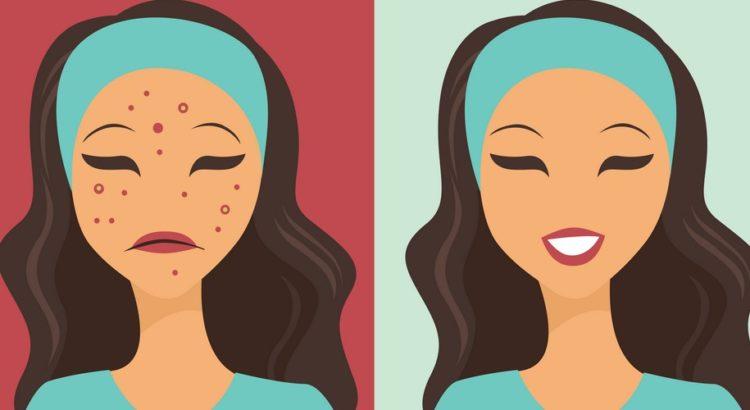 Et opdelt billede af en kvinde med og uden hudproblemer