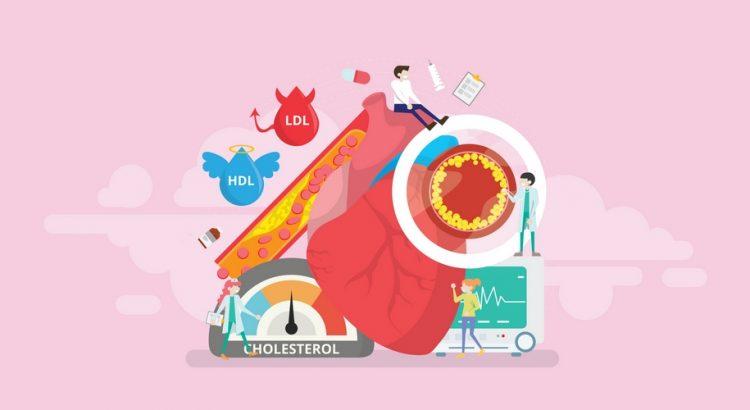 Illustration af kolesterol i organer og blodåre