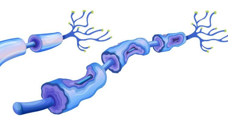 Nerveceller der er i stykker