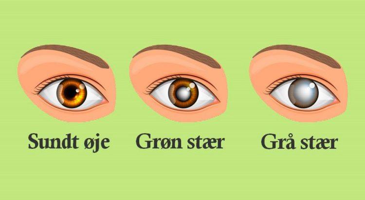 Et almindeligt øje, øje med grøn stær og et øje med grå stær